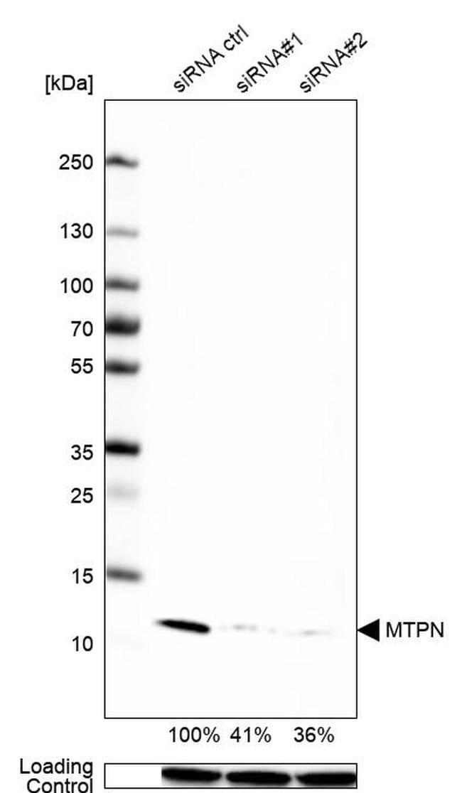 Myotrophin Antibody in Western Blot (WB)