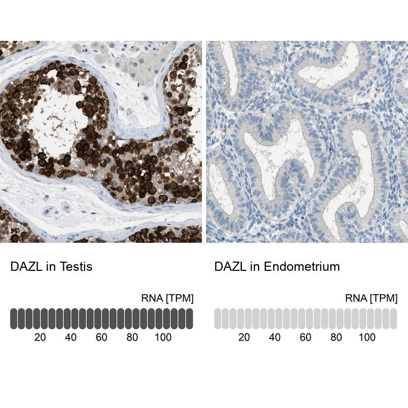 DAZL Antibody in Immunohistochemistry (IHC)