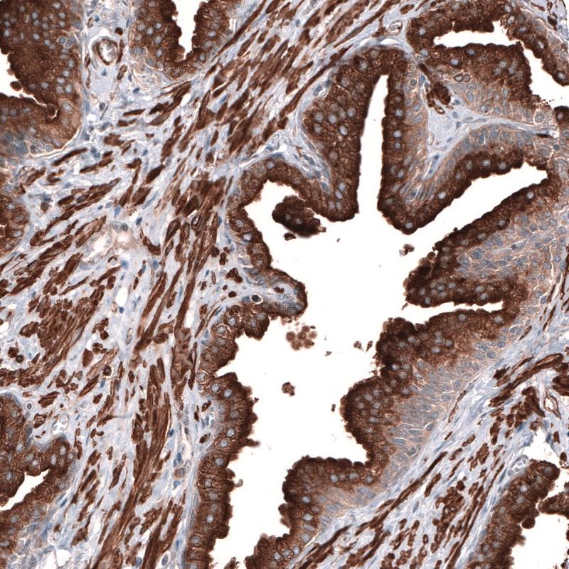 RAB27B Antibody in Immunohistochemistry (IHC)