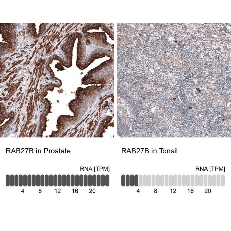 RAB27B Antibody in Relative expression