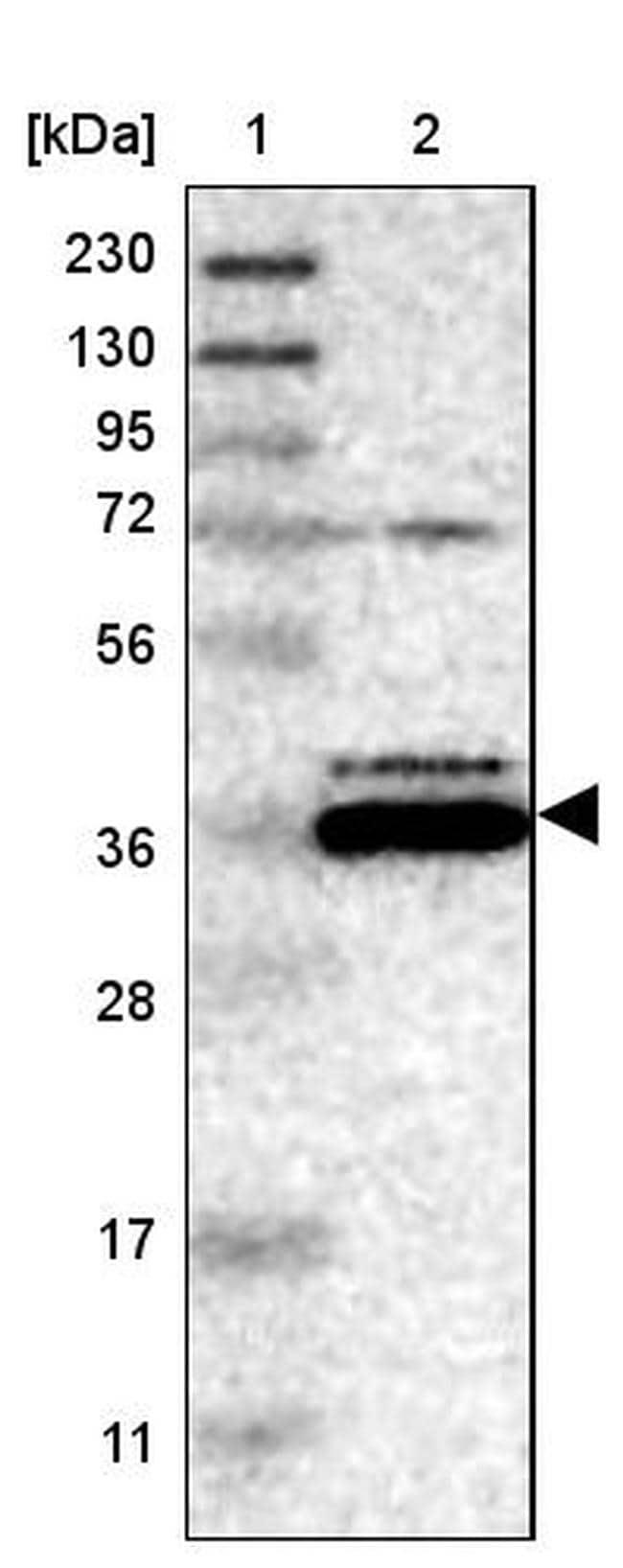 Bif1 Antibody in Western Blot (WB)