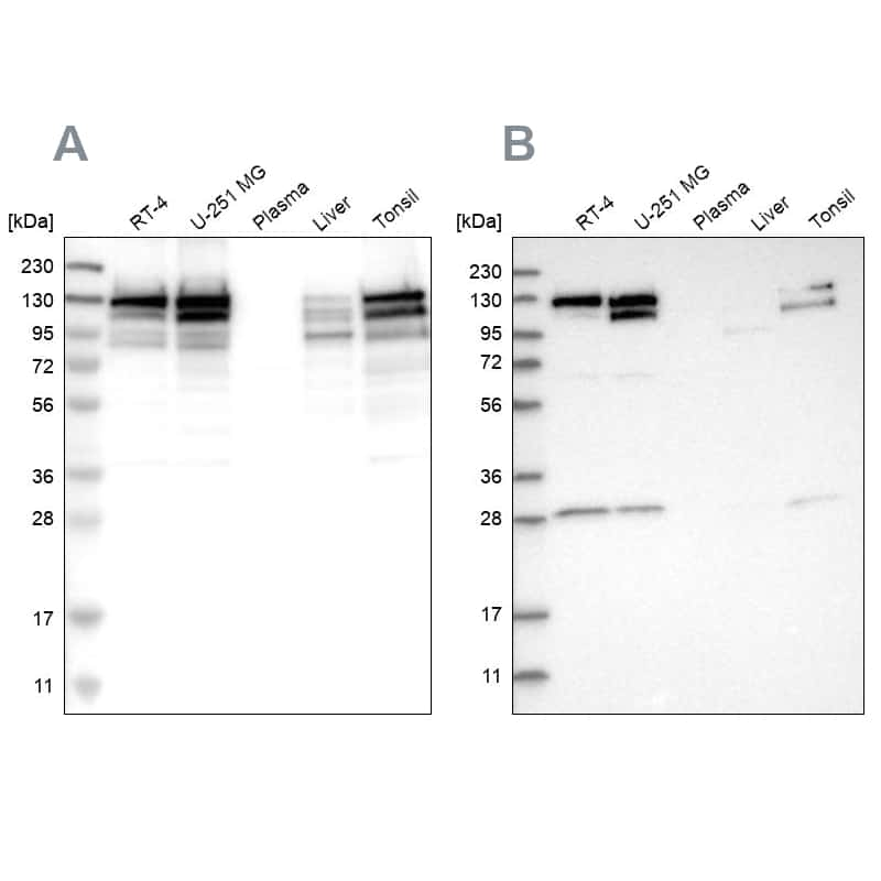 DBC1 Antibody in Western Blot (WB)