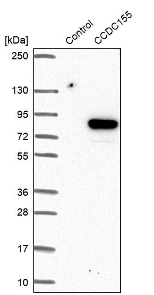 CCDC155 Antibody in Western Blot (WB)