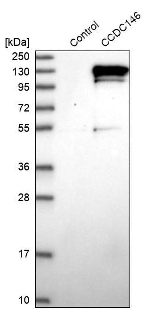 CCDC146 Antibody in Western Blot (WB)