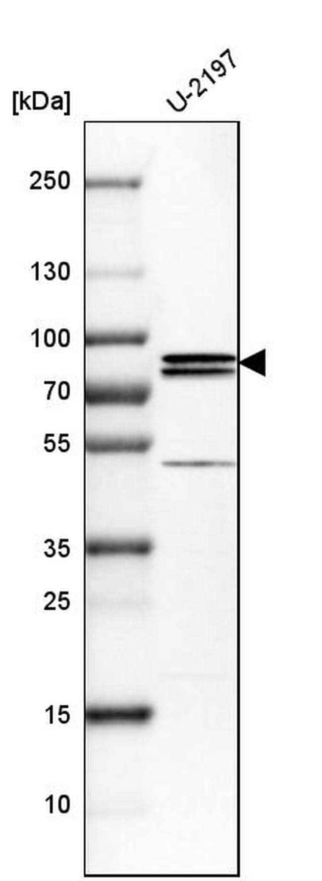 PNPLA8 Antibody in Western Blot (WB)