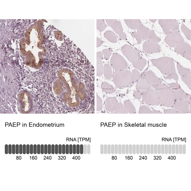 PAEP Antibody in Immunohistochemistry (IHC)