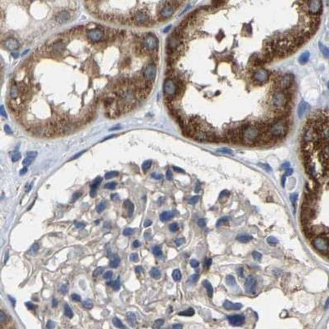 SHMT2 Antibody in Immunohistochemistry (IHC)