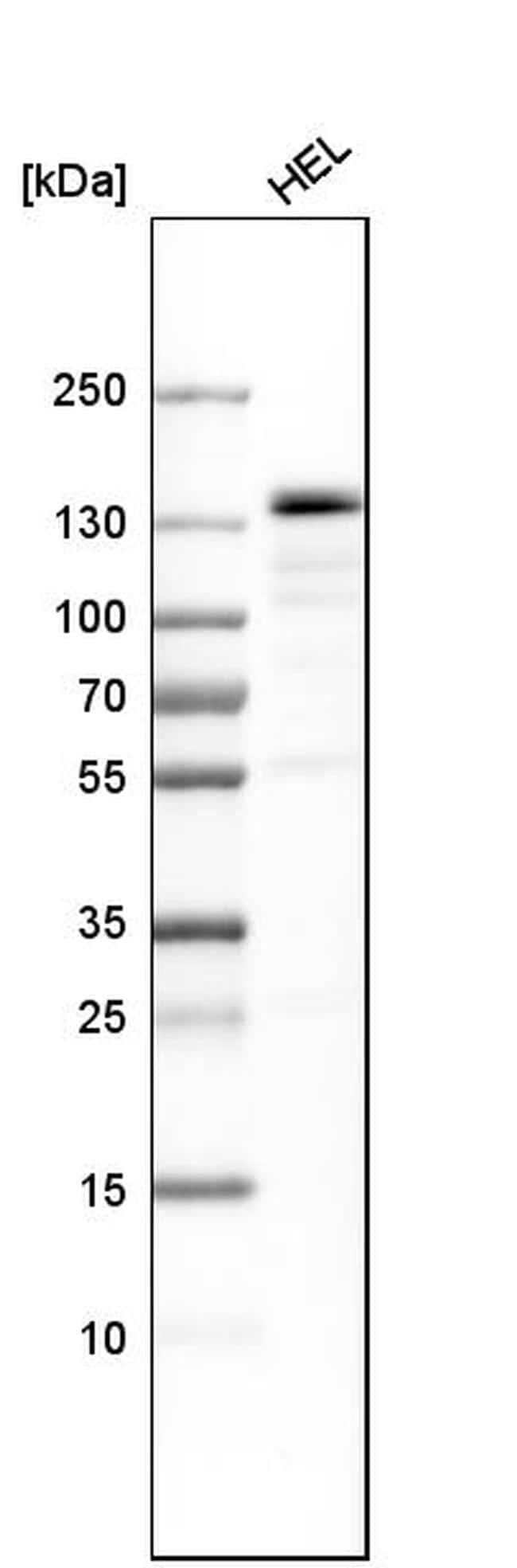 PRPF4B Antibody in Western Blot (WB)