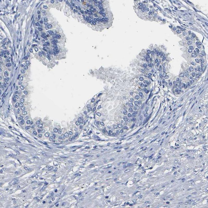 SLCO2B1 Antibody in Immunohistochemistry (IHC)