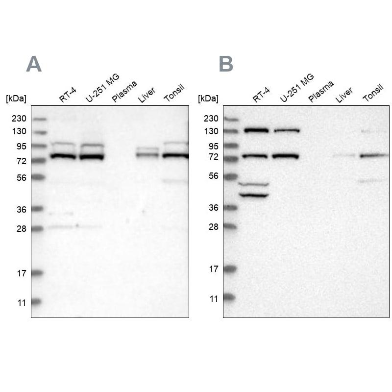 PLAA Antibody in Western Blot (WB)