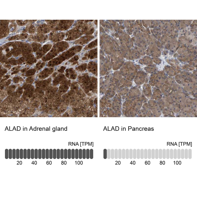 ALAD Antibody in Relative expression