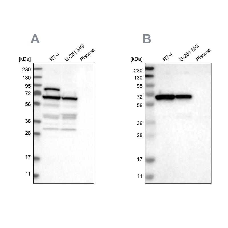 NOP58 Antibody in Western Blot (WB)