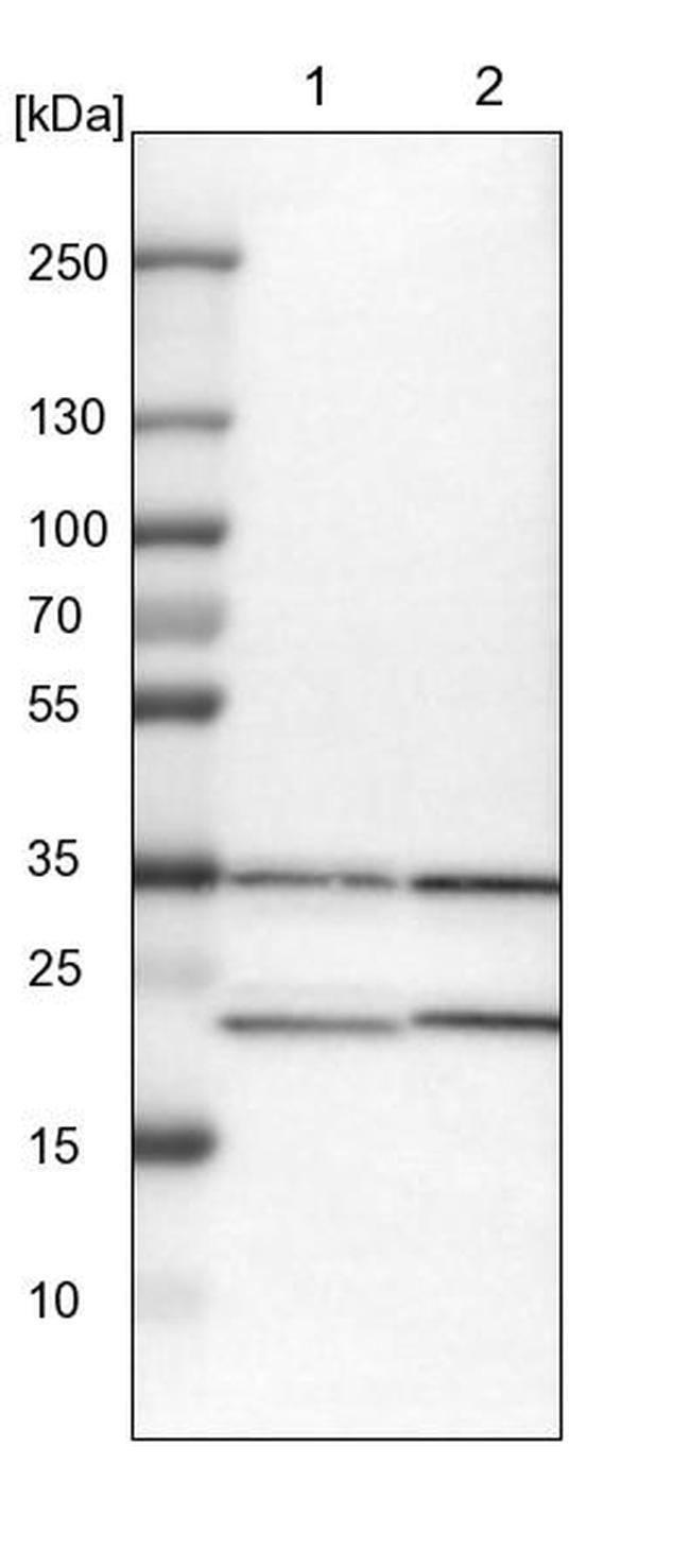 ZNF313 Antibody in Western Blot (WB)