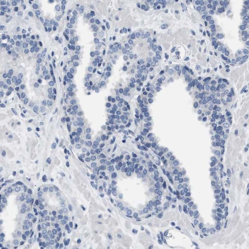 LRWD1 Antibody in Immunohistochemistry (IHC)