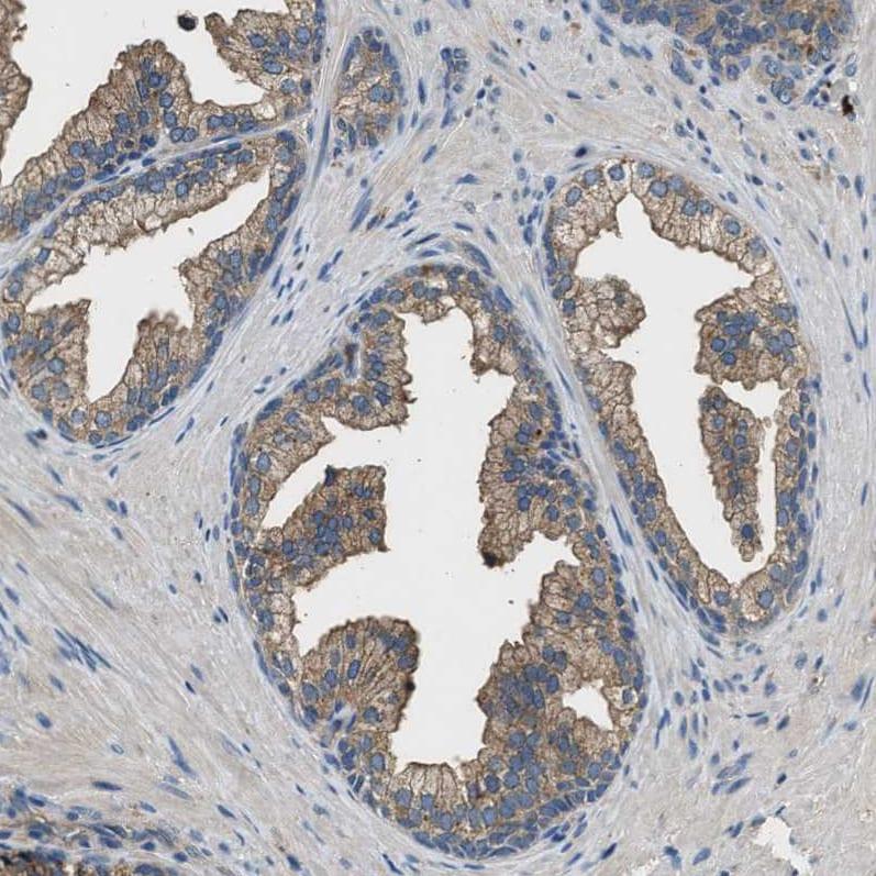 BLOC1S1 Antibody in Immunohistochemistry (IHC)