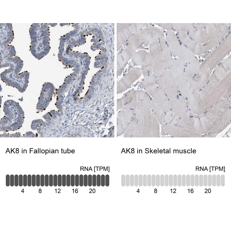 Adenylate Kinase 8 Antibody in Relative expression