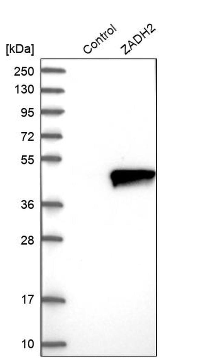 ZADH2 Antibody in Western Blot (WB)