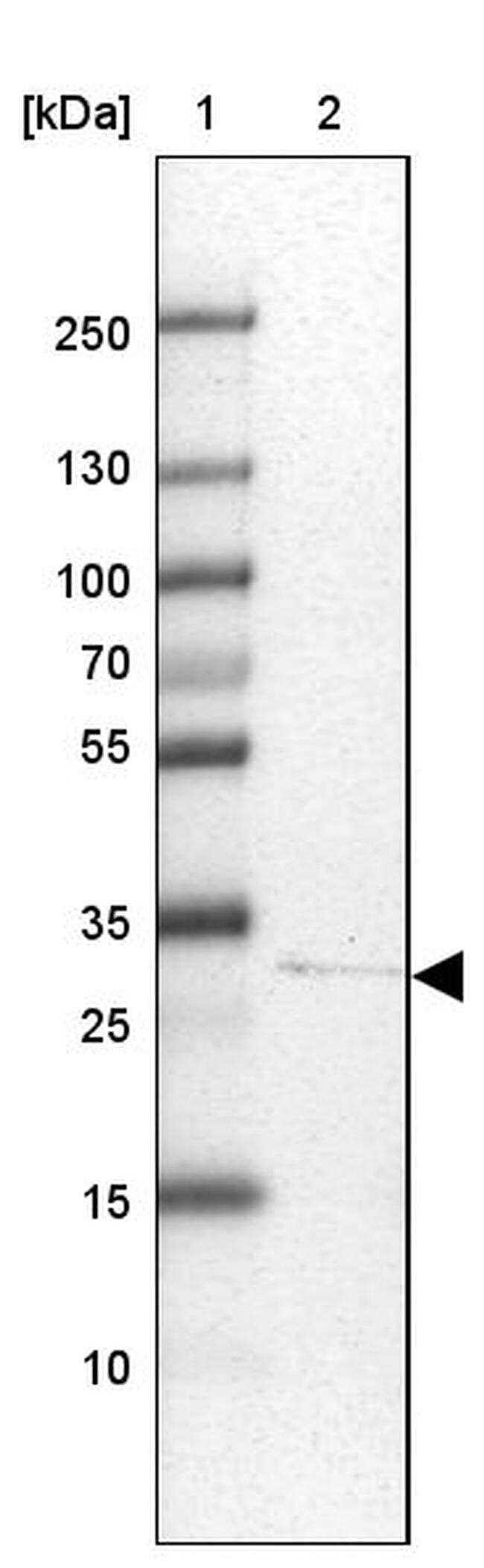 HSD17B11 Antibody in Western Blot (WB)