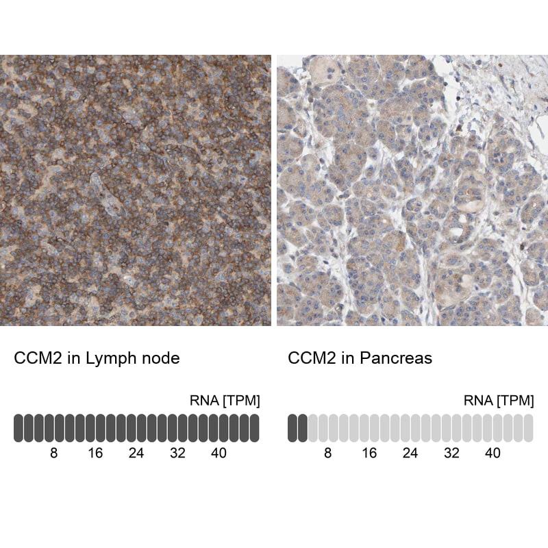 CCM2 Antibody in Immunohistochemistry (IHC)