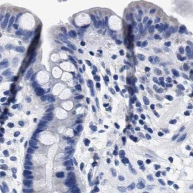 KLHL41 Antibody in Immunohistochemistry (IHC)