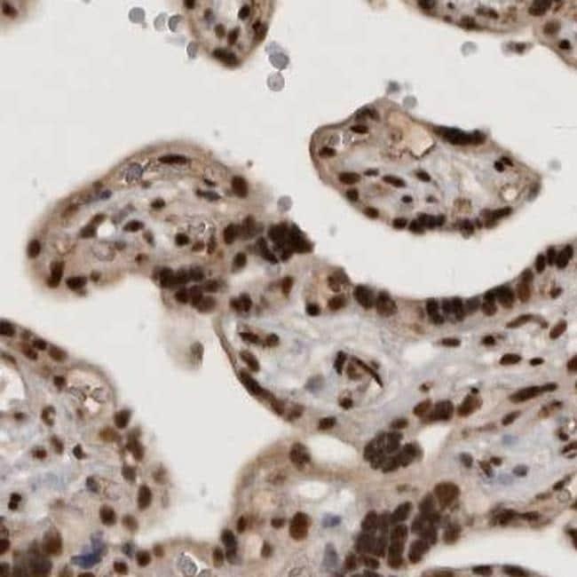 CBLL1 Antibody in Immunohistochemistry (IHC)