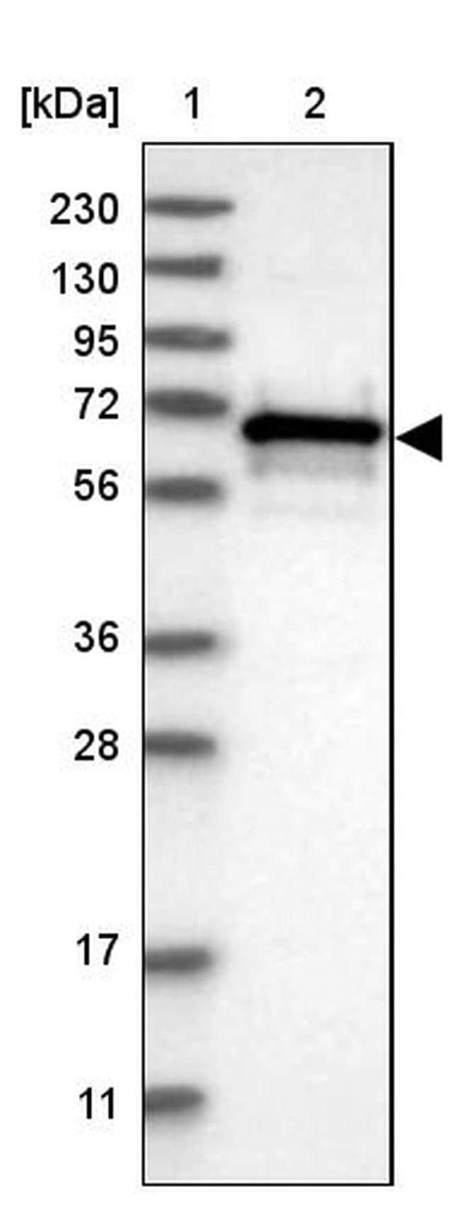 CBLL1 Antibody in Western Blot (WB)