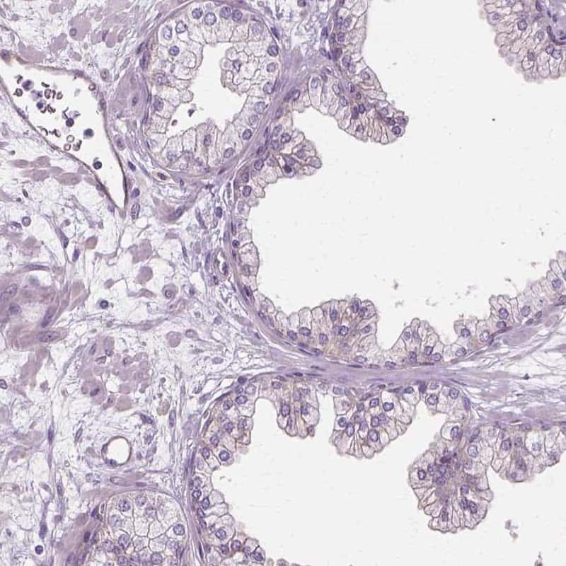 C9orf117 Antibody in Immunohistochemistry (IHC)