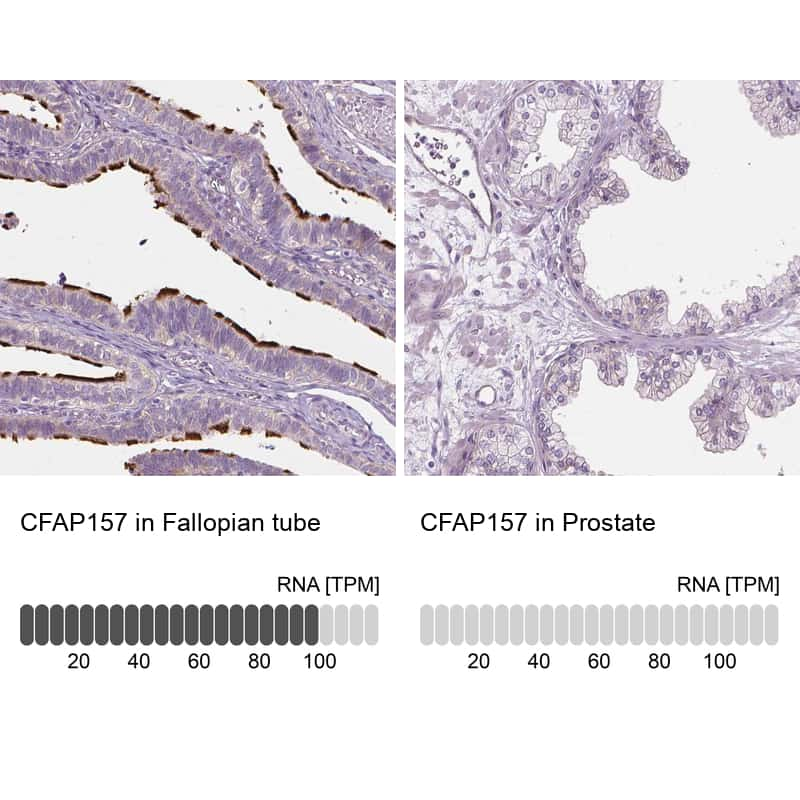 C9orf117 Antibody in Relative expression