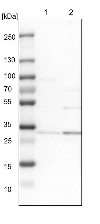 RRP4 Antibody in Western Blot (WB)