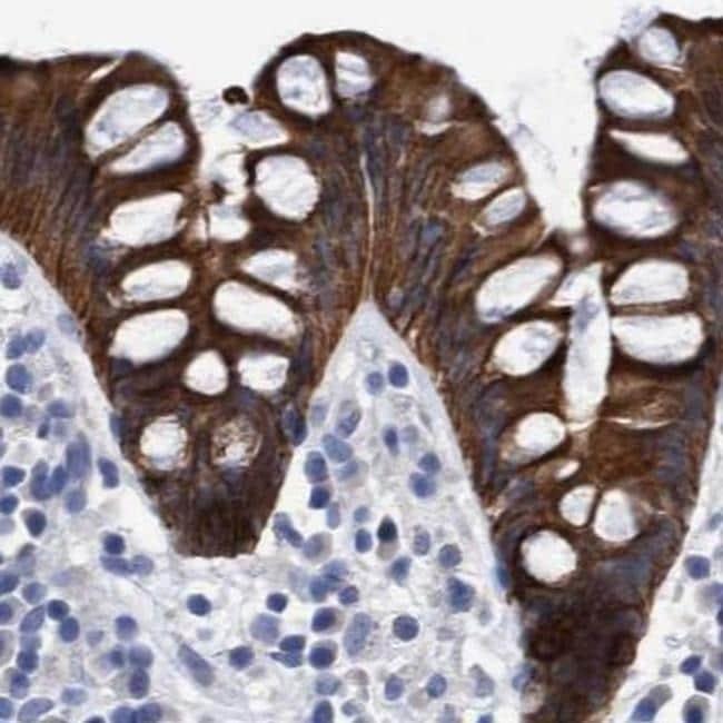 MKS1 Antibody in Immunohistochemistry (IHC)