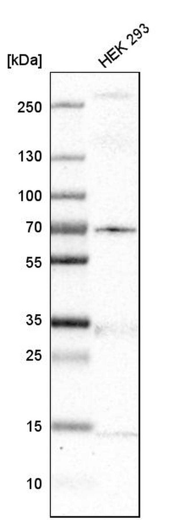 MKS1 Antibody in Western Blot (WB)