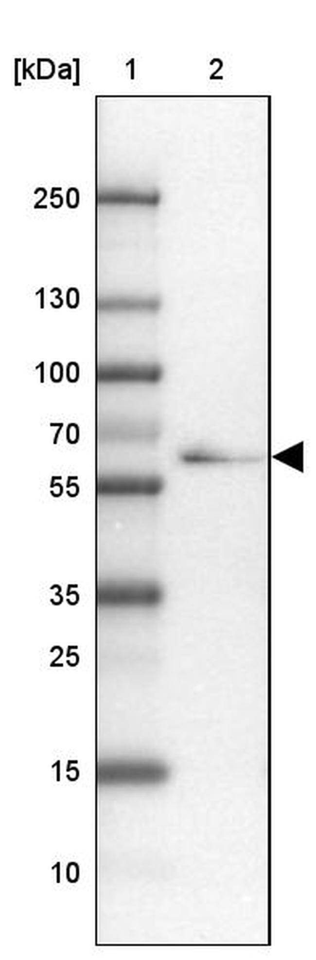 TTLL11 Antibody in Western Blot (WB)