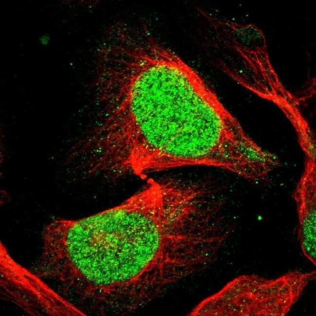 eIF4A3 Antibody in Immunocytochemistry (ICC/IF)
