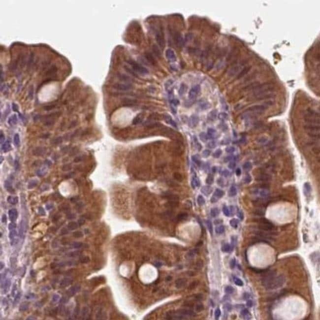 SAT2 Antibody in Immunohistochemistry (IHC)