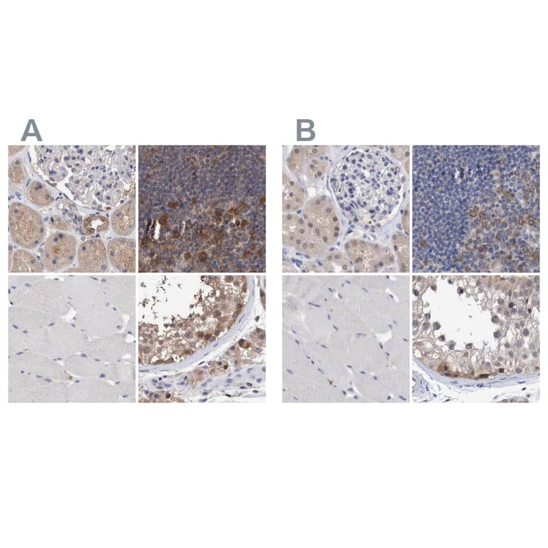 PFAS Antibody in Immunohistochemistry (IHC)