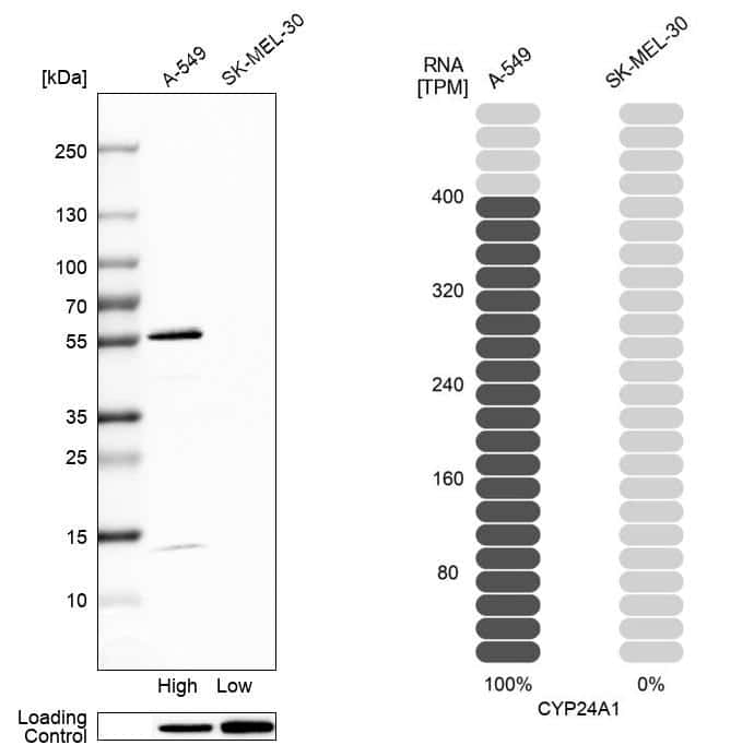 CYP24A1 Antibody in Relative expression