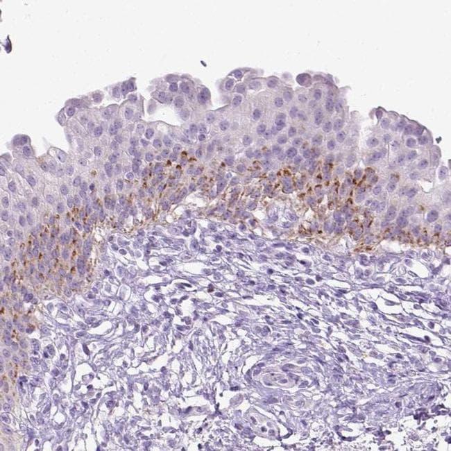 CYP24A1 Antibody in Immunohistochemistry (IHC)