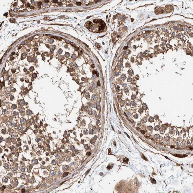 PKD1L1 Antibody in Immunohistochemistry (IHC)