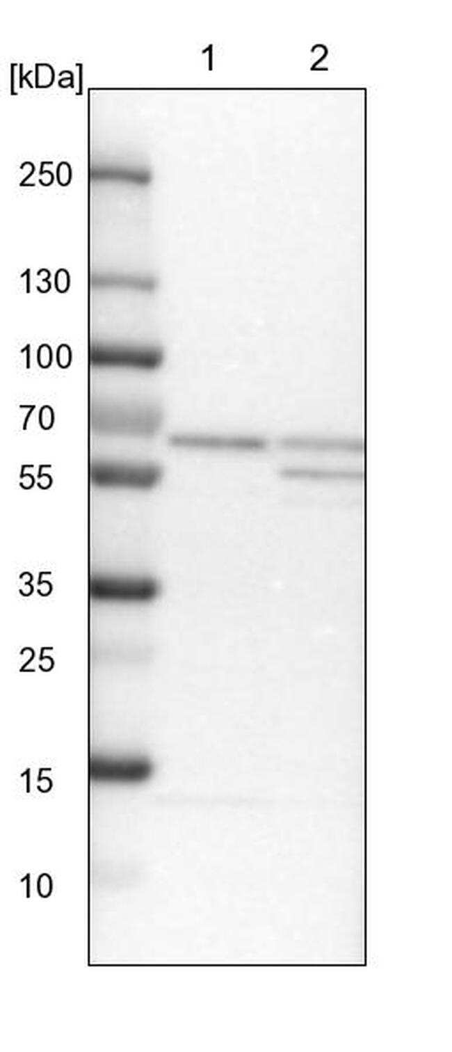CoA Synthase Antibody in Western Blot (WB)