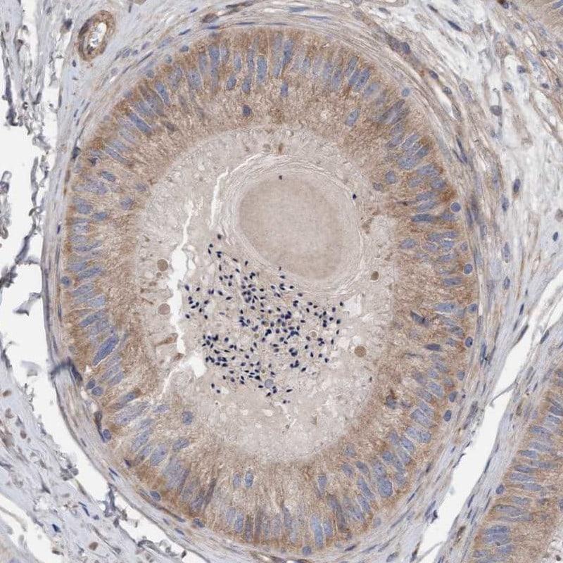 CDK5RAP3 Antibody in Immunohistochemistry (IHC)