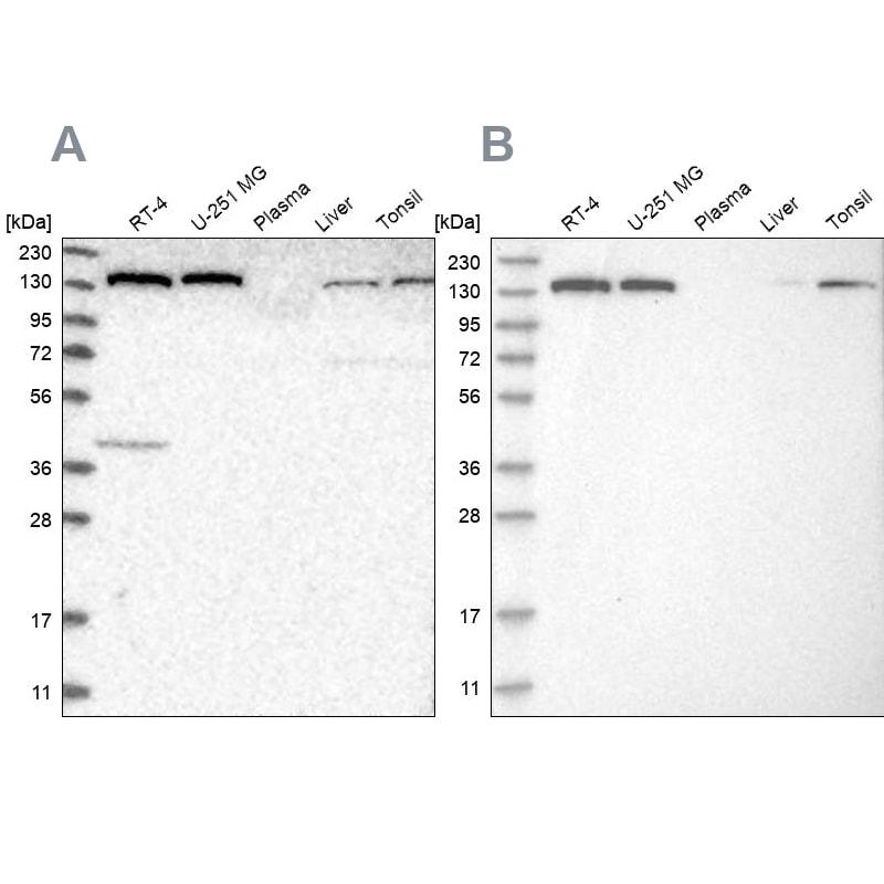 PFAS Antibody in Western Blot (WB)