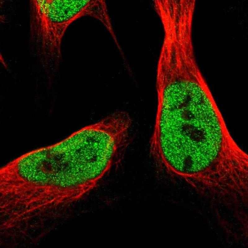 SCRN2 Antibody in Immunocytochemistry (ICC/IF)