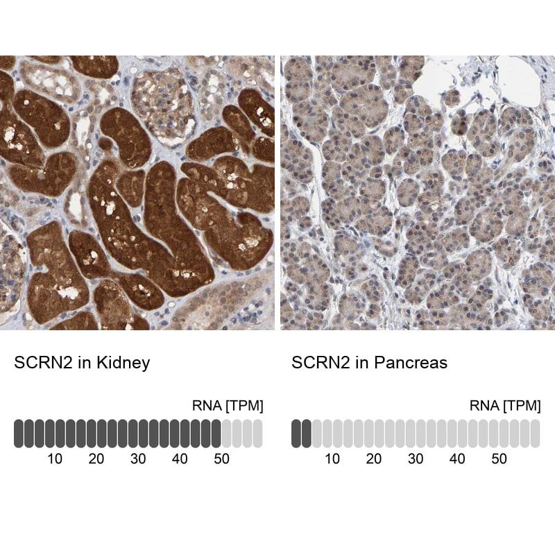 SCRN2 Antibody in Relative expression