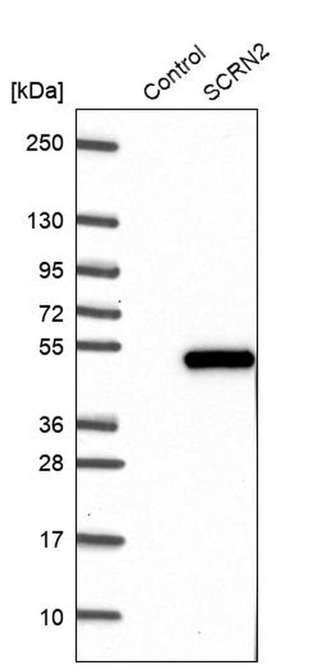 SCRN2 Antibody in Western Blot (WB)