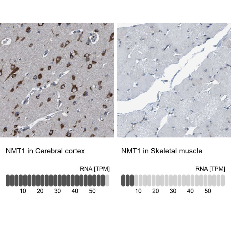 NMT1 Antibody in Relative expression