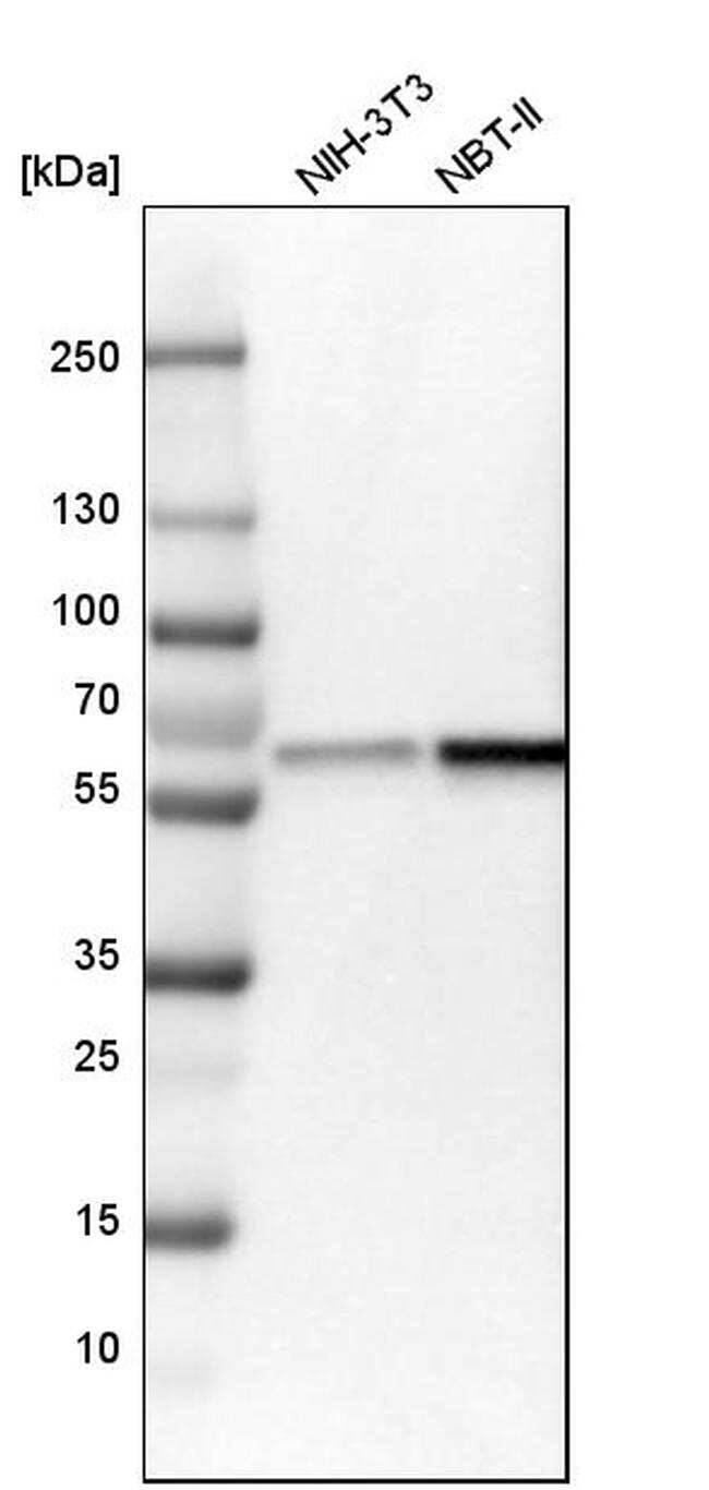 NMT1 Antibody in Western Blot (WB)
