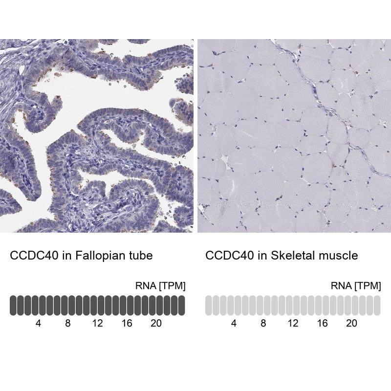 CCDC40 Antibody in Immunohistochemistry (IHC)