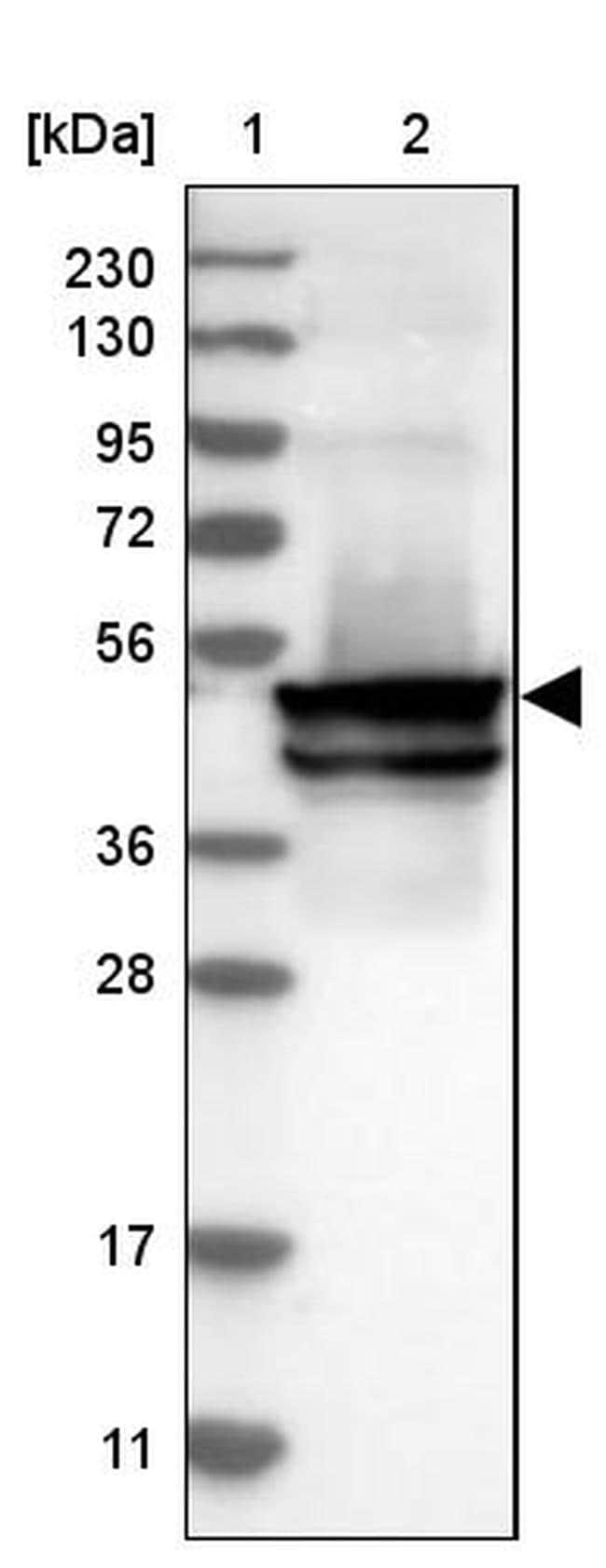 KRT24 Antibody in Western Blot (WB)