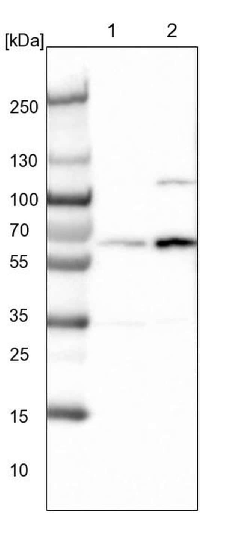 DNAJC7 Antibody in Western Blot (WB)