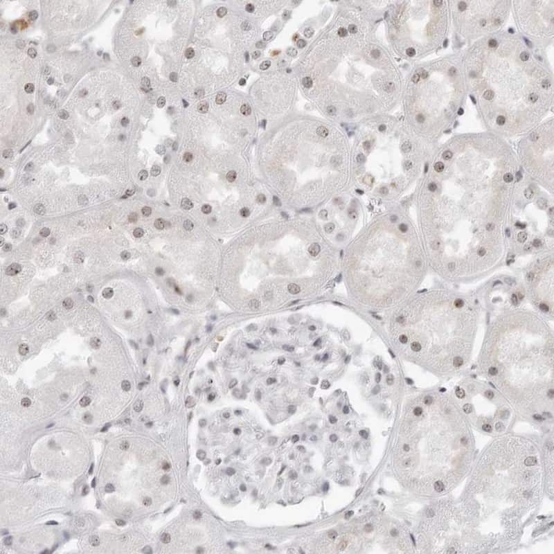 WRAP53 Antibody in Immunohistochemistry (IHC)